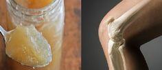 Efectele pozitive ale mierii asupra sănătății umane este cunoscută încă din antichitate. Astfel, conform mitologiei grecești, ambrosia – băutura zeilor nemuritori, era preparată din miere. În prezent mierea nu și-a pierdut deloc poziția sa în tratamentul bolilor. Din contra, s-au descoperit multe proprietăți noi ale acestui produs natural fantastic. Una dintre aceste proprietăți noi este tratarea și regenerarea, oaselor, articulațiilor și genunchilor. Redacția Sanatosi.com îți va dezvălui în…