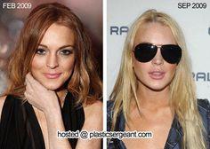Lindsay Lohan's Lip Augmentation