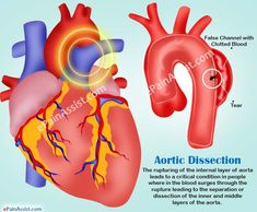 Aortic Dissection: Types, Causes, Symptoms, Treatment, Survival Rate, Prognosis… Bicuspid Aortic Valve, Abdominal Aorta, Aortic Dissection, Subclavian Artery, Marfan Syndrome, Aortic Aneurysm, Normal Blood Pressure, Mortality Rate, Body Organs