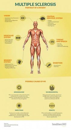Are you at risk for Multiple Sclerosis? An infographic detailing the causes and symptoms of Multiple Sclerosis. Chronic Illness, Chronic Pain, Sensory System, Multiple Sclerosis Awareness, Multiple Sclerosis Medications, Multiple Sclerosis Funny, Muscle Atrophy, Muscular System, Nursing