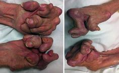 Untreated seropositive rheumatoid arthritis of the hands - Weird Picture Archive Arthritis Remedies, Rheumatoid Arthritis, Arthritis Hands, Trauma, Human Oddities, Bizarre, Medical Science, Medical History, Weird Pictures