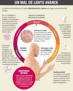 El Ministerio de Salud confirmó ayer la aparición de esta enfermedad generalmente ajena a Chile.