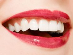 teeth | White Teeth 300x225 Teeth Whitening Dentist Sterling Hts MI