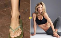 Kate Hudson has six toes on one of her feet