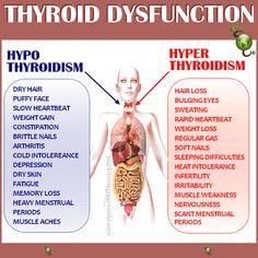 Hypothyroid / Hyperthyroid