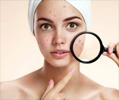 40 Weird But Genius Beauty Hacks This DIY mask zaps those pesky blackheads. Mix together 1 teaspoon of warm water, 1 teaspoon of honey, and 1 tablespoon of flour. Dip a cloth into the solution, and then apply it to your skin. Leave on 10 to 15 mins. Daily Beauty Routine, Beauty Routines, Get Rid Of Blackheads, Pimples, Beauty Skin, Health And Beauty, Glam Glow, Beauty Hacks That Actually Work, Korean Beauty Tips