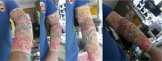 Joint support, tattoo sleeve - any design you choose. #personalized #professor #tattoo #sleeve