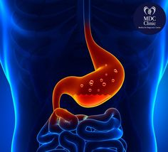 By Heather Tallman Ruhm, MD Could your heartburn or acid reflux be the opposite of what you have been told? Low stomach acid can be as big, if not a bigger problem, than high stomach acid. Read this before you take your next antacid! Gastritis Erosiva, Peptic Ulcer, Gastroesophageal Reflux Disease, Acid Indigestion, Gastritis Symptoms, Gerd Symptoms, Heartburn Relief, Fast Tract Diet, Health And Wellness