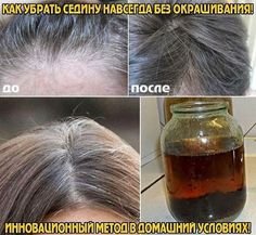 How to remove without coloring gray hair FOREVER! Beauty Care, Diy Beauty, Beauty Hacks, Diy Hair Detangler, Magical Makeup, Natural Cosmetics, Diy Hairstyles, Healthy Tips, Beauty Secrets