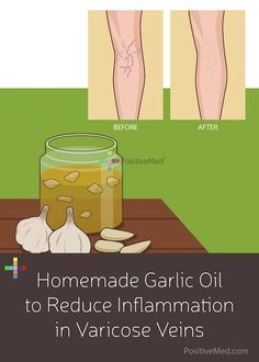 Homemade Garlic Oil to Reduce Inflammation in Varicose Veins #varicosvein ##garlicoil #inflammation