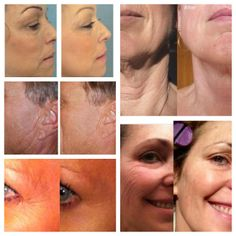It's Nerium Time! Below are some images of real results of real people who use Nerium. Time is running out... customers who buy Nerium AD day and night cream for 90 days, will get their day cream for FREE for life! I can provide you sample or you can order: www.sandil.nerium.com.