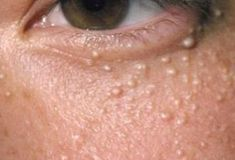 Clogged pores are known to be the cause of various skin problems like white heads, black heads and pimples. Unclogging these pores is . White Bumps On Face, White Pimples On Face, Small Bumps On Face, Bumps Under Eyes, Cleanser For Combination Skin, Pores, Prevent Wrinkles, Acne Remedies, Facial Care