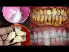 تبييض الاسنان في المنزل في 3 دقائق || كيف تبيض أسنانك الصفراء طبيعيا || 100٪ فعال - YouTube Teeth Whitening Remedies, Natural Teeth Whitening, Teeth Health, Perfect Smile, Teeth Care, White Teeth, Teeth Cleaning, Health Remedies, The Cure