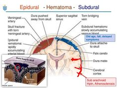 epidural vs subdural hematoma presentation - Google Search Cranial Anatomy, Anatomy And Physiology, Medicine Notes, Internal Medicine, Nursing School Tips, Medical School, Brain Injury, Head Injury, Physical Therapy