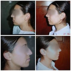 Before/After for Rhinoplasty