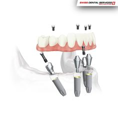 """The """"All-on-four"""" is one of the techniques that revolutionised dental implants, facilitating the implant process in cases where patients have little bone and may require grafts to perform the rehabilitation. So the whole process becomes less time consuming and more effective, making smiling easier! Find out now! --------------------------------------------www.swissdentalservices.com/en#dentist#implants#smile#clinic#ismile"""