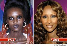 The question is, what type of plastic surgery is Iman getting and how does she look so naturally young? This astounding before and after photos shows Iman in 1975 and in 2008. #SkinWhiteningTips #SkinBleachingUnderarm #GlowingSkinProducts 1975, Supermodel Iman, Iman Model, Essential Oils For Face, Looks Dark, Skin Lightening Cream, Celebrity Skin, Lighten Skin, Younger Skin