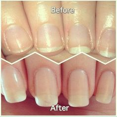This DIY nail soak for longer, stronger nails combines orange juice, garlic, and olive oil to give you incredible nails FAST! before and after nail growth Vitamine E Capsules, Diy Nails Soak, Hair And Nails, My Nails, Nail Oil, Nagel Hacks, Brittle Nails, How To Grow Nails, Grow Long Nails