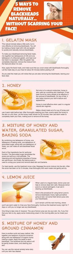 5 Effective Ways on How to Remove Blackheads Naturally without Scarring Your Face. >> PIN or LIKE this Skin Care InfoGraphic! Share It with Your Friends, Relatives and Colleagues. #acne #blackheads #acnetreatment http://www.howtogetridofacnescar.com/how-to-remove-blackheads-naturally/