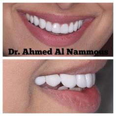 Holywood smile design harmony with the lips lifelike dental veneers by famous #cosmeticdentist #surgeon #drahmedalnammous Dental veneers without preparation without cutting from teeth lifelike color healthy gum. #veneer #beforeandafter #cosmeticsurgery #cosmeticdentistry #dentist #dental  #dubai #oman #qatar #kuwait #bahrain #ksa #saudiarabia #uae #abudhabi #sharjah 04-3940006 by bellaromacenter Our Cosmetic Dentistry Page: http://www.myimagedental.com/services/cosmetic-dentistry/ Google My…