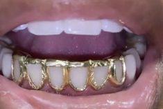 Hippie Jewelry, Cute Jewelry, Body Jewelry, Jewelry Accessories, Jewellery, Diamond Grillz, Diamond Teeth, Girl Grillz, Cute Braces