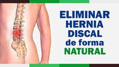 35 Ideas De Columna Mariela Hernias De Disco Hernia Lumbares