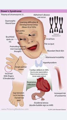Down's Syndrome. Are you aware of all the features of this common syndrome. Can you recall them? Using this diagram from www.PicturingMedi… to help you! Medicine Pictures, Nursing Tips, Postpartum Nursing, Nursing Board, Pediatric Nurse Practitioner, Med Surg Nursing, Nursing School Notes, Medical School, Medical Mnemonics