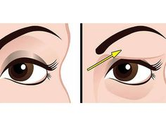 Saggy and droopy eyelids can be really annoying and makeup often looks unattractive on loose skin. Droopy eyelids may even make a person look much older. In general, droopy eyelids are a result of the natural process of aging, but they can also be caused Saggy Eyelids, Drooping Eyelids, Droopy Eyes, Skin Tag Removal, Loose Skin, Hooded Eyes, Make A Person, Natural Health Remedies, Hygiene