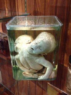 Le Mutter museum ou le musée des horreurs médicales - http://www.2tout2rien.fr/le-mutter-museum-ou-le-musee-des-horreurs-medicales/