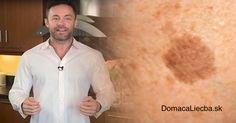 Začali sa vám na pokožke objavovať pigmentové škvrny a neviete, ako sa ich účinne zbaviť? Tak vyskúšajte tento trik známeho dermatológa!