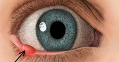 Vytvoril sa vám v na očnom viečku jačmeň? Nevadí, poznáme 7 prírodných receptov, s ktorými jeho liečenie výrazne urýchlite.