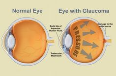 What your eyes look like with #glaucoma.
