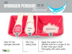hydrogen peroxide for abscessed tooth