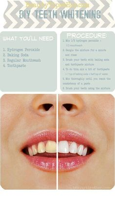 Oh Lord. Every bride needs this no matter what her teeth look like