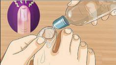 Conoce porqué le dicen a esta preparación el arrasador de hongos en las uñas, dale una oportunidad y verán los resultados Health Remedies, Home Remedies, Natural Remedies, Nail Fungus, Body Treatments, Fungi, Healthy Tips, Toenails, Dental