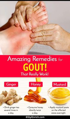 Home Remedies For Gout That Really Work and Provide Relief From Pain!