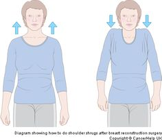 Exercises after Latissimus Dorsi breast reconstruction surgery