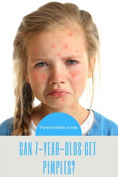 Pimples can be such an annoying thing for adolescents and even adults, but can children as young as get pimples? How To Clear Pimples, How To Remove Pimples, Best Thing For Acne, Girl With Acne, Pimples On Face, Pimples Remedies, 7 Year Olds, Adolescence