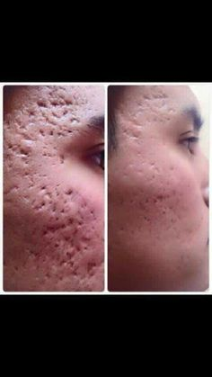 Before & After using Nerium