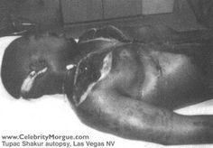 Morgue Photos of Dead Celebrities tu pak