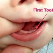 Our 10 month old son finally got his first baby tooth in today! What a fun milestone. Click the link to see a picture of his cute little tooth! Baby Teething Symptoms, Teething Signs, Down Syndrome Baby, Music For Studying, 10 Month Olds, Daily Video, First Tooth, Baby Milestones, Nice To Meet