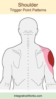 Acupuncture For Back Pain tags-shoulder - Years of clinical experience reveal that pain under the shoulder-blade with neck pain are usually caused by two or three other patterns. The pain under the shoulder is most commonly this trigger po… Sore Shoulder, Shoulder Pain Relief, Neck And Shoulder Pain, Shoulder Muscles, Neck Pain, Shoulder Tension, Shoulder Joint, Shoulder Trigger Points, Shoulder Pain Exercises