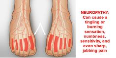 Shoes for Neuropathy Pain Relief Shoes | Z-CoiL