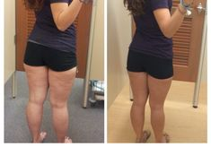Today I will explain how and why cellulite takes hold and what you can do about it. The bane of some women's lives it can make skin look less attractive, a Cellulite Exercises, Cellulite Remedies, Moisturizer For Oily Skin, Anti Aging Moisturizer, Aging Backwards, Home Treatment, Ideal Body, Aging Process, Build Muscle