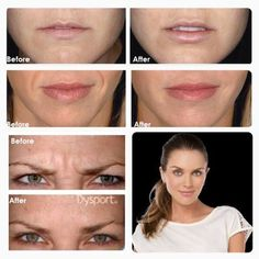 Restylane filler for lips, eyes, cheeks and laugh lines! Banish fine lines with Dysport! With expert injector RN Melanie Speed Call now 310.770.9949