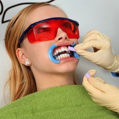 7 Teeth-Whitening Treatments, Ranked in Order of Effectiveness - Oral and Dental Health Center 2020 Best Teeth Whitening Kit, Whitening Skin Care, Teeth Whitening Remedies, Natural Teeth Whitening, Zahn Bleaching, Teeth Bleaching, Snapchat, Cosmetic Dentistry, Soda