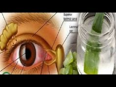 Say Goodbye To Your Glasses And IMPROVE YOUR EYESIGHT With This Incredible Home Recipe!! - YouTube