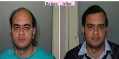 The #FUE #hair #transplant in #Pathankot gives you the best full-fledged natural hair on your scalp.