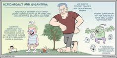 Acromegalia vs gigantismo