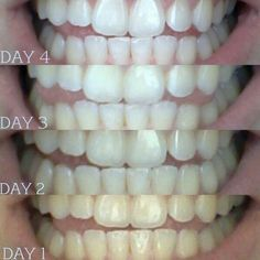 Coconut oil pulling. Take about a tablespoon coconut swish in your mouth be for breakfast for 20min. (DO NOT SWALLOW) After 20min spit it out in garbage can. Rinse your mouth with cup of warm salt water. Benefits, teeth whitening, reduces cavity pain, helps with dry mouth, helps Gums stop bleeding ect. R.H.: